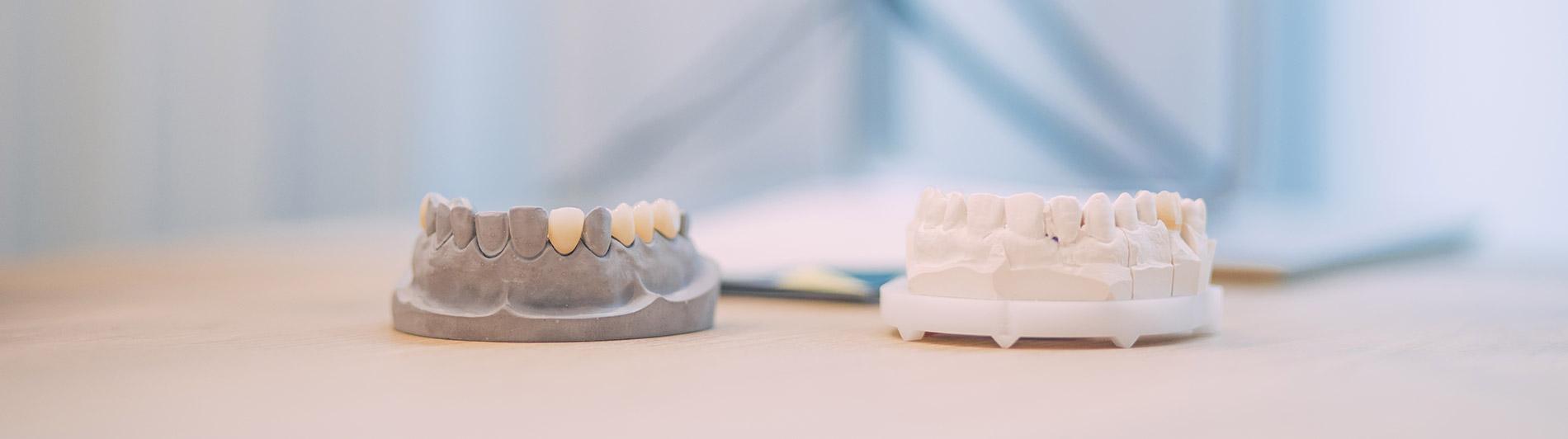 Zahnersatz Zahnarzt Münster