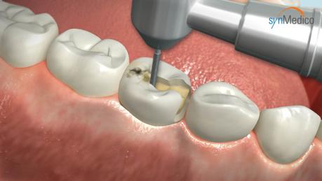 Bohrung eines Zahns