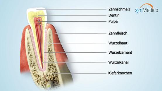 Abbildung eines Zahns von Innen