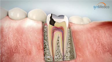 Zahn mit Füllung