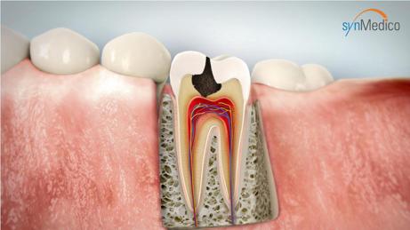 Zahn mit Schaden